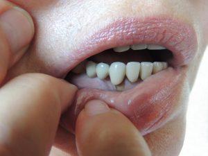 nhiễm trùng miệng