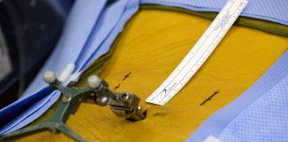 phẫu thuật cột sống xâm lấn tối thiểu
