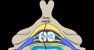 Vị trí của các tế bào thần kinh bị ảnh hưởng bởi teo cơ tủy sống trong tủy sống