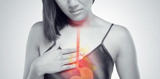 Trào ngược axit gây ra axit dạ dày để đi lên đường ống thực phẩm vào miệng.