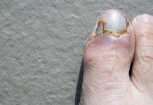 Một ngón chân cái có móng bị gãy