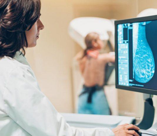 chụp x quang tuyến vú 3d